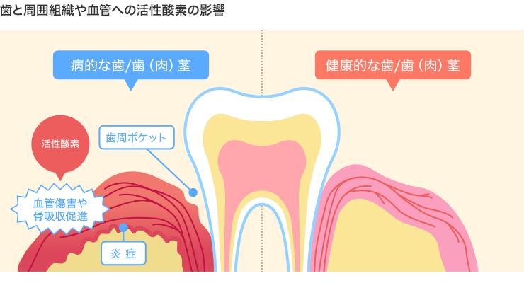 歯と周囲組織や血管への活性酸素の影響